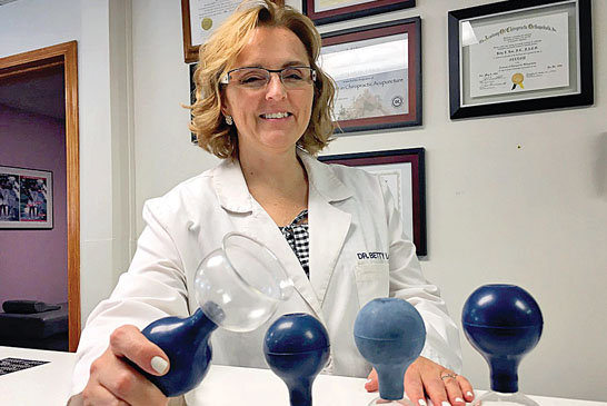 Cupping therapy featured